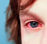 How Our Eyes Respond To Irritants